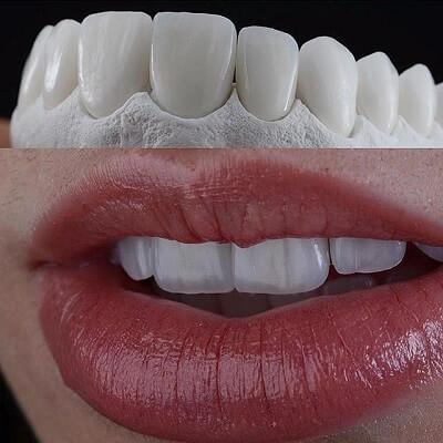 ưu điểm Nổi Bật Của Răng Sứ Zirconia