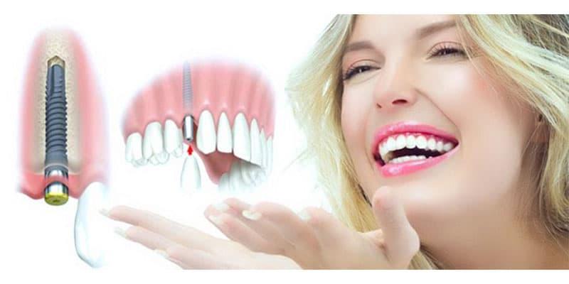 ưu điểm nổi bật của trụ implant dentium