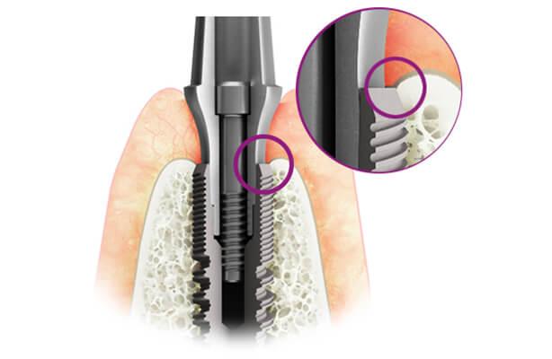 ưu điểm Trụ Implant C Tech