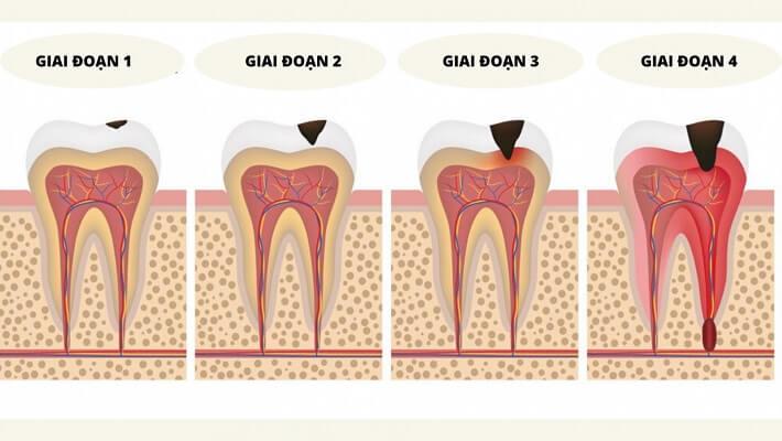 Viêm Tủy Răng Chia Làm Nhiều Giai đoạn